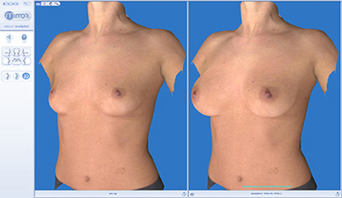 BreastSculptorReview Vectra XT Fot. Lux Med