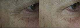 Filorga 3 Przed i po