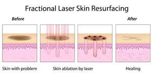 Laser frakcyjny efekty Fot 123RF