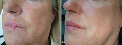 Fotografia pacjentki przed i po zabiegu ProfHilo Fot. Medical Pharma