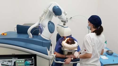 Robot do przeszczepu włosów w Polsce